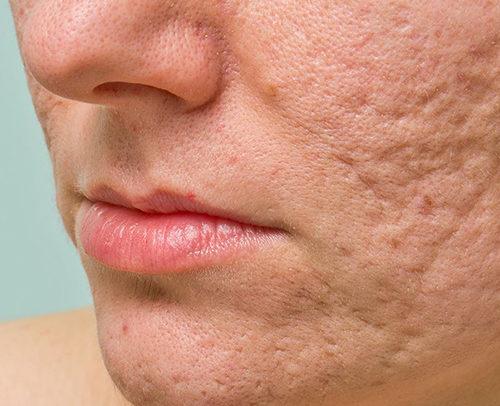 acne-scars-asian