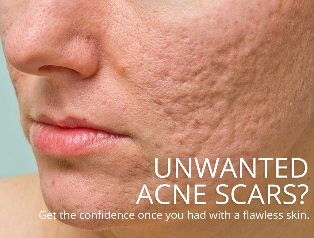 Acne Scar Removal In Singapore Acne Scar Removal Treatment Lim