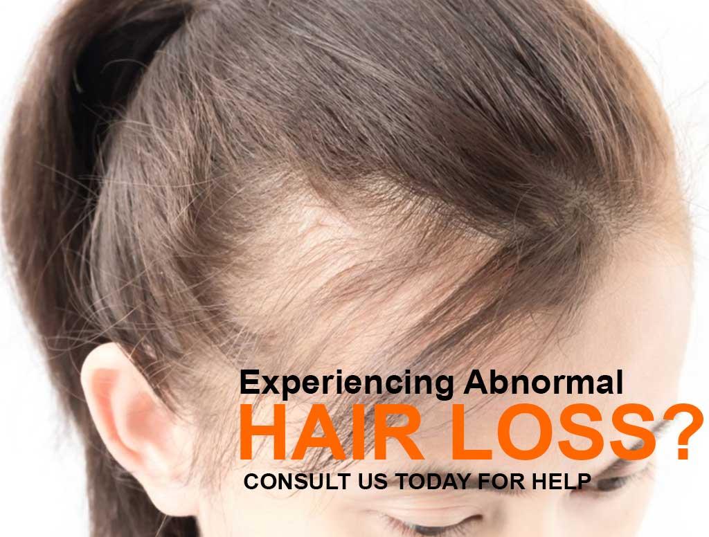 Fashionnfreak Hair Loss Treatment