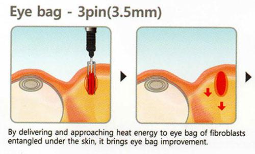 Eyeballs and droopy eyelids treatment | Lim Clinic & Surgery