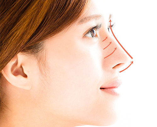 limclinic-and-surgery-nose-threadlift