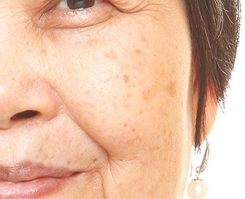 pigmentation-asian