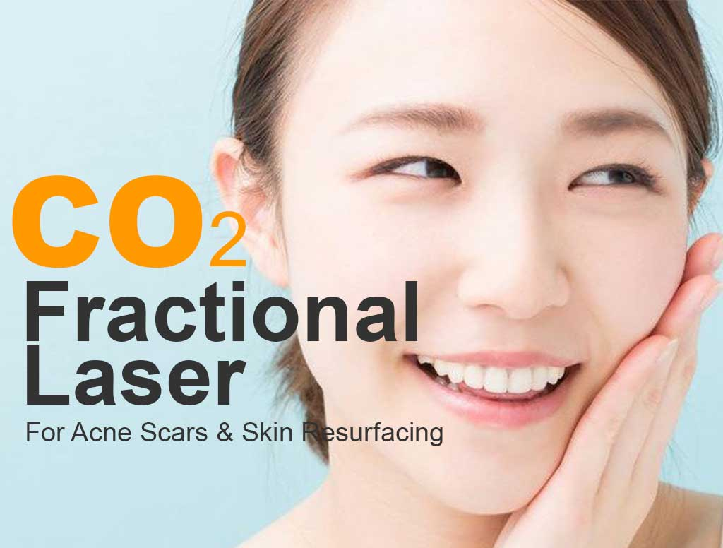 Fractional Co2 Laser Treatment In Singapore Acne Scar Removal